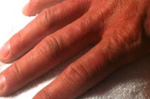 manicure sposo